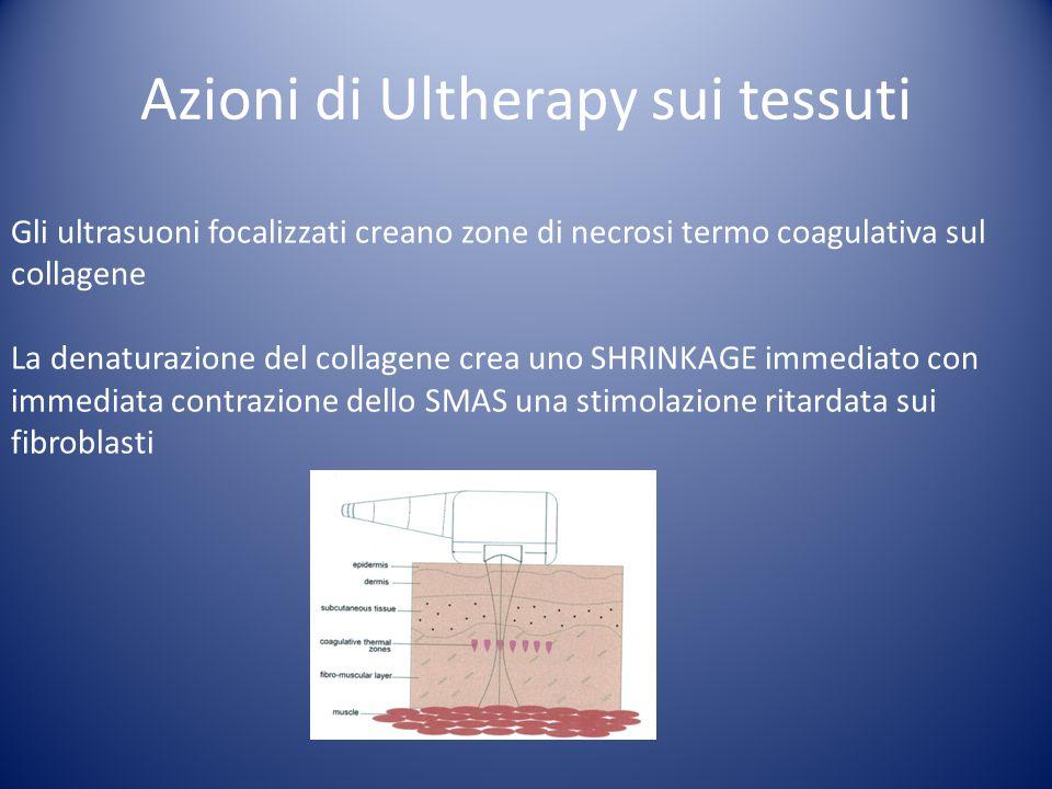 Azioni di Ultherapy sui tessuti Gli ultrasuoni focalizzati creano zone di necrosi termo coagulativa sul collagene La denaturazione del collagene crea