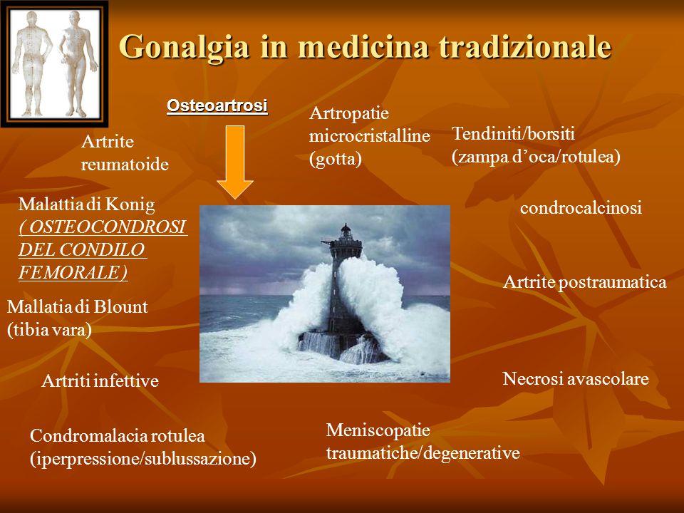 Gonalgia in medicina tradizionale Artrite reumatoide Artropatie microcristalline (gotta) Malattia di Konig ( OSTEOCONDROSI DEL CONDILO FEMORALE ) Mall
