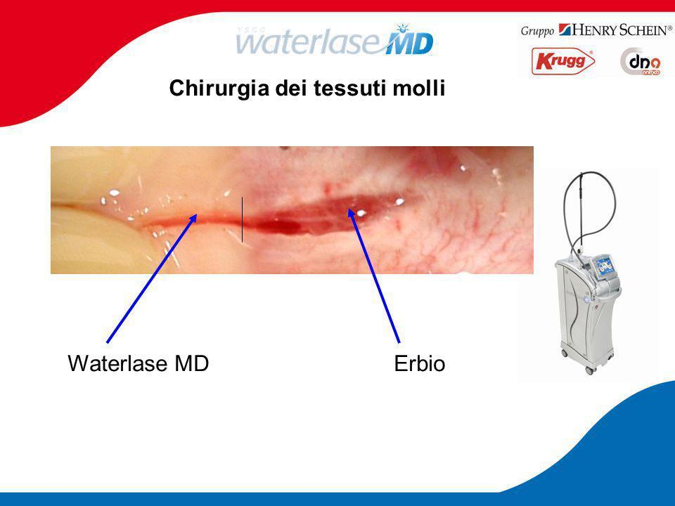 Chirurgia dei tessuti molli Waterlase MDErbio