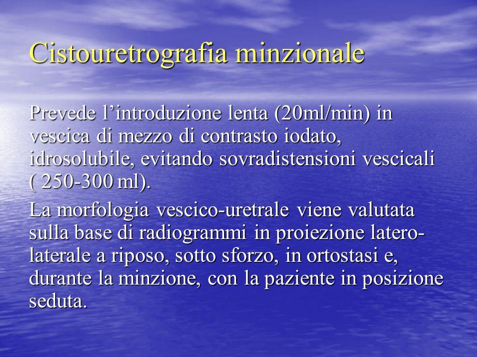 Cistouretrografia minzionale Prevede l'introduzione lenta (20ml/min) in vescica di mezzo di contrasto iodato, idrosolubile, evitando sovradistensioni