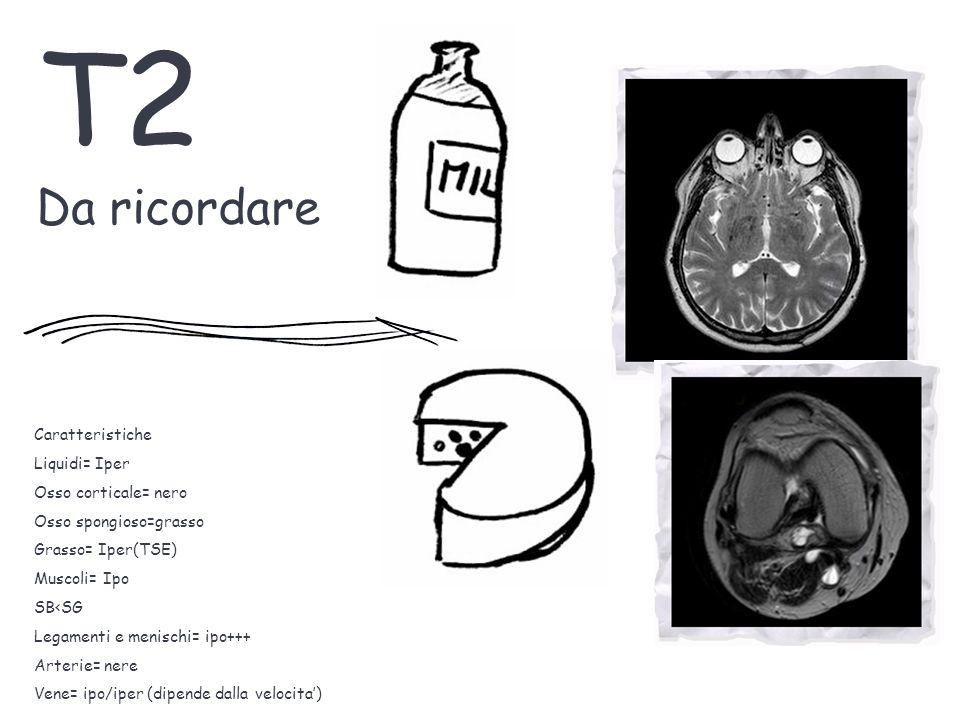T2 Da ricordare Caratteristiche Liquidi= Iper Osso corticale= nero Osso spongioso=grasso Grasso= Iper(TSE) Muscoli= Ipo SB<SG Legamenti e menischi= ipo+++ Arterie= nere Vene= ipo/iper (dipende dalla velocita')