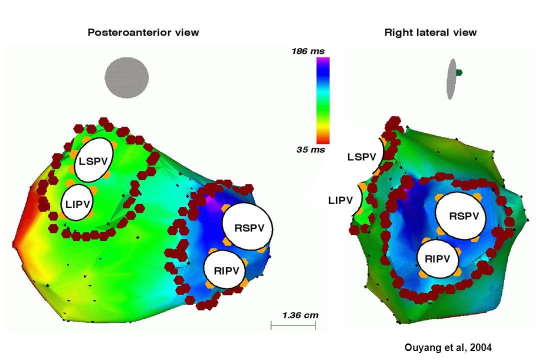 Ouyang et al, 2004