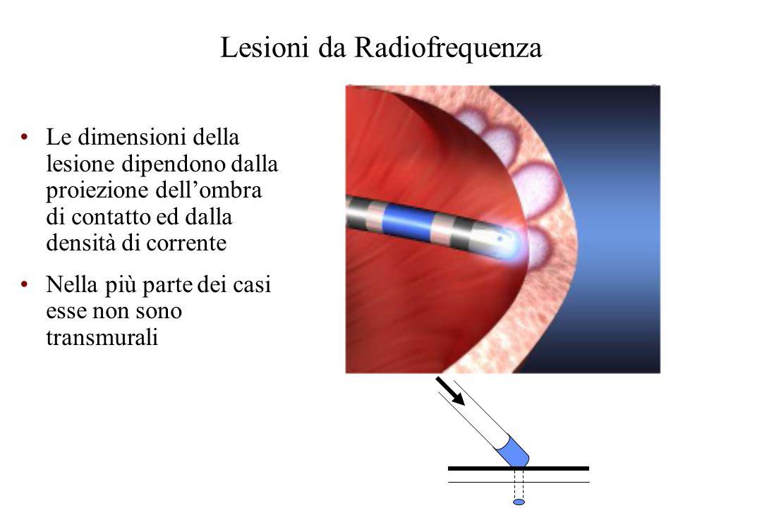 Lesioni da Radiofrequenza Le dimensioni della lesione dipendono dalla proiezione dell'ombra di contatto ed dalla densità di corrente Nella più parte dei casi esse non sono transmurali