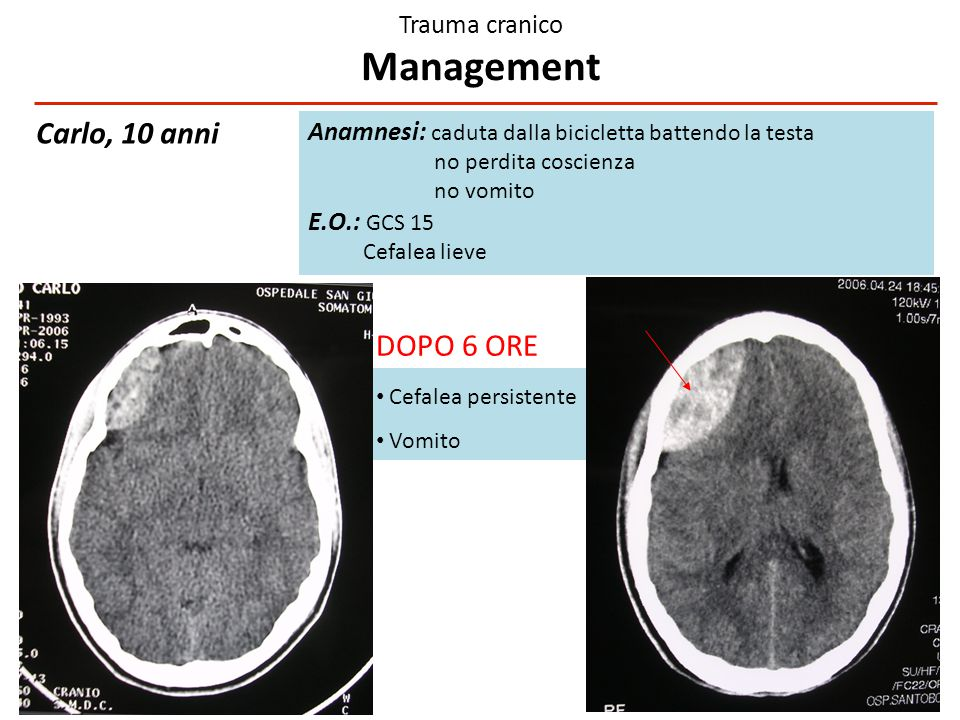 Trauma cranico Management GCS 14-15 SIMEUP 2014. Approccio in Pronto Soccorso al bambino con trauma cranico