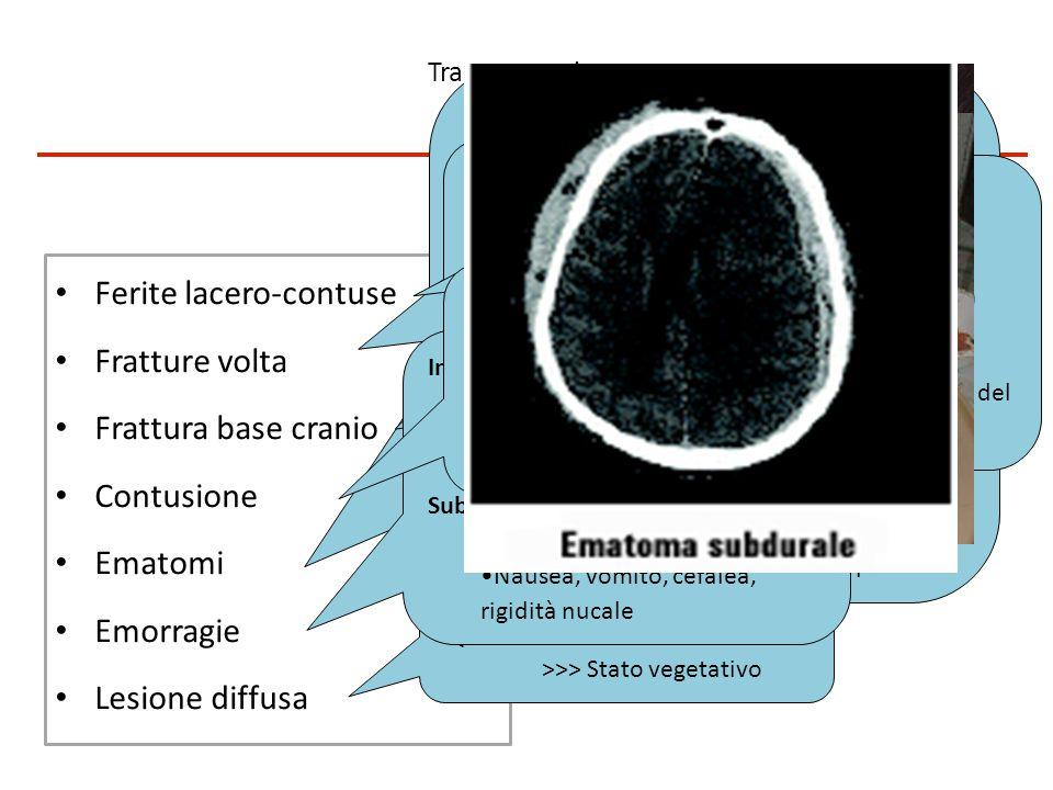 Classificazione del danno cranio-encefalico Trauma cranico Fratture craniche ed ematoma epidurale >>>> lesioni di più frequente riscontro Contusione,