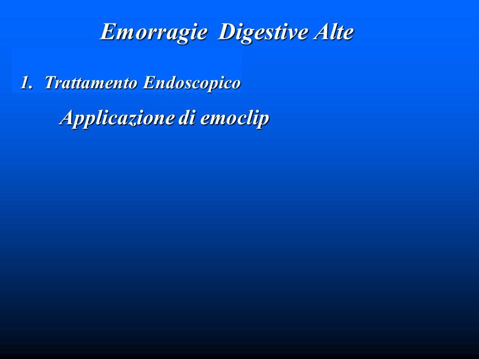 Emorragie Digestive Alte 1.Trattamento Endoscopico Applicazione di emoclip