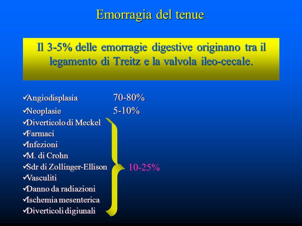 Il 3-5% delle emorragie digestive originano tra il legamento di Treitz e la valvola ileo-cecale.