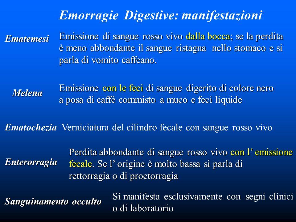 Emorragie Digestive: manifestazioni Ematemesi Emissione di sangue rosso vivo dalla bocca; se la perdita è meno abbondante il sangue ristagna nello stomaco e si parla di vomito caffeano.