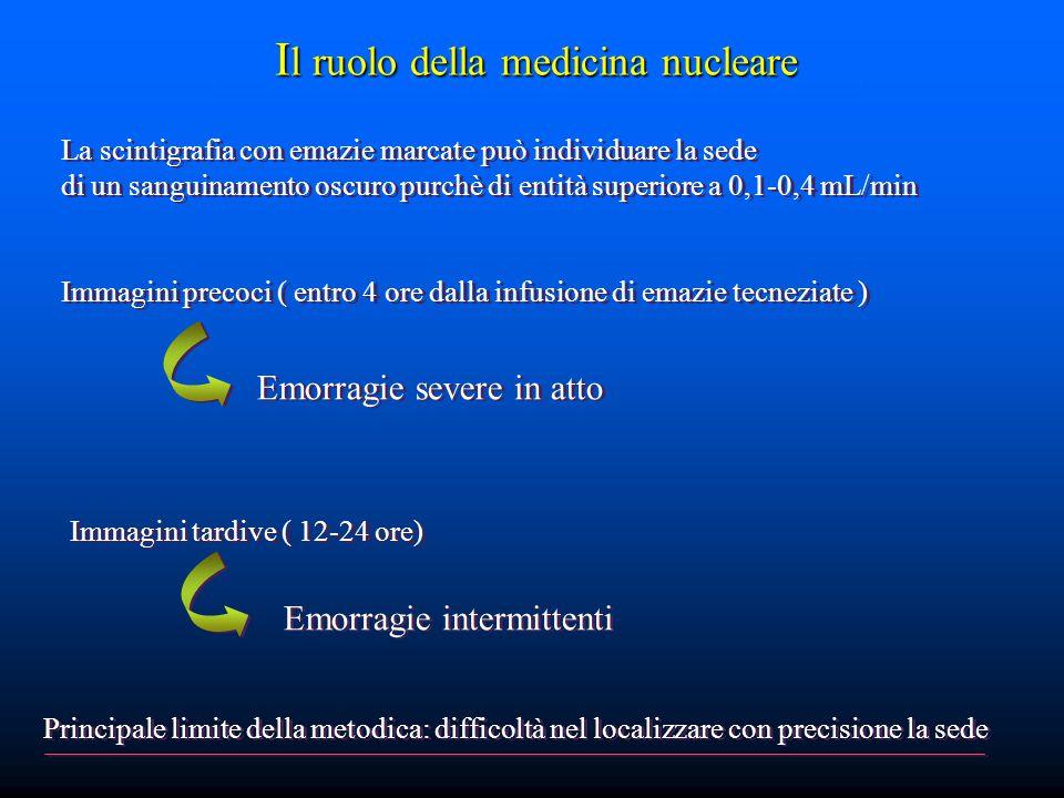 I l ruolo della medicina nucleare La scintigrafia con emazie marcate può individuare la sede di un sanguinamento oscuro purchè di entità superiore a 0,1-0,4 mL/min Immagini precoci ( entro 4 ore dalla infusione di emazie tecneziate ) La scintigrafia con emazie marcate può individuare la sede di un sanguinamento oscuro purchè di entità superiore a 0,1-0,4 mL/min Immagini precoci ( entro 4 ore dalla infusione di emazie tecneziate ) Immagini tardive ( 12-24 ore) Emorragie severe in atto Emorragie intermittenti Principale limite della metodica: difficoltà nel localizzare con precisione la sede
