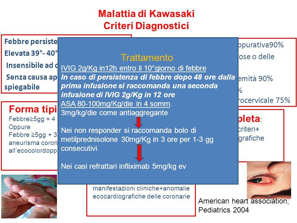 Malattia di Kawasaki Criteri Diagnostici Febbre persistente per 5 o più giorni Elevata 39°- 40°C Insensibile ad ogni trattamento Senza causa apparente