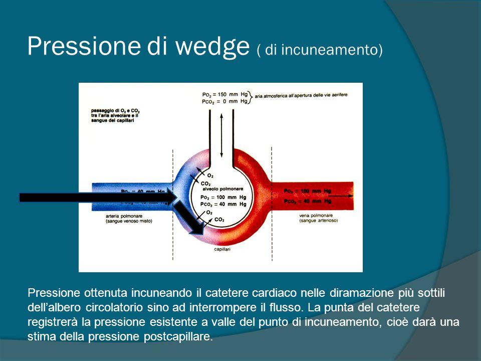 Pressione di wedge ( di incuneamento) Pressione ottenuta incuneando il catetere cardiaco nelle diramazione più sottili dell'albero circolatorio sino ad interrompere il flusso.