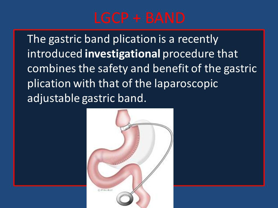 LGCP + BAND The gastric band plication is a recently introduced investigational procedure that combines the safety and benefit of the gastric plicatio