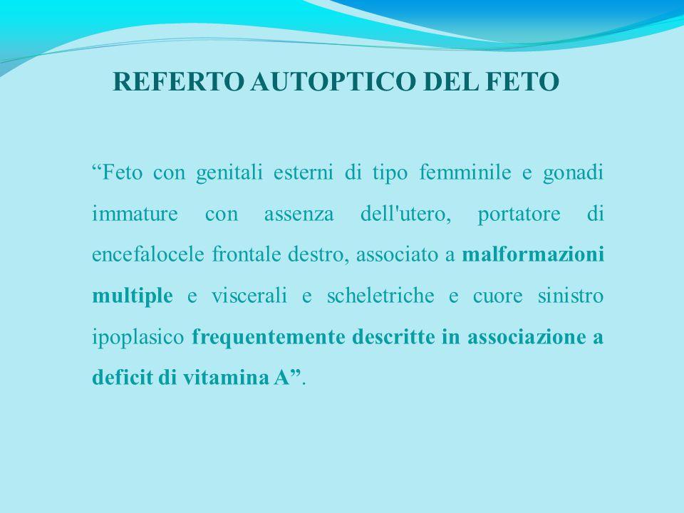 """REFERTO AUTOPTICO DEL FETO """"Feto con genitali esterni di tipo femminile e gonadi immature con assenza dell'utero, portatore di encefalocele frontale d"""