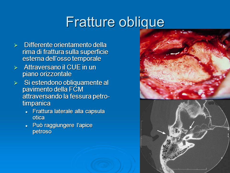 Fratture oblique  Differente orientamento della rima di frattura sulla superficie esterna dell'osso temporale  Attraversano il CUE in un piano orizz