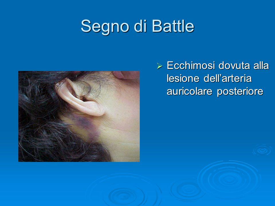 Segno di Battle  Ecchimosi dovuta alla lesione dell'arteria auricolare posteriore
