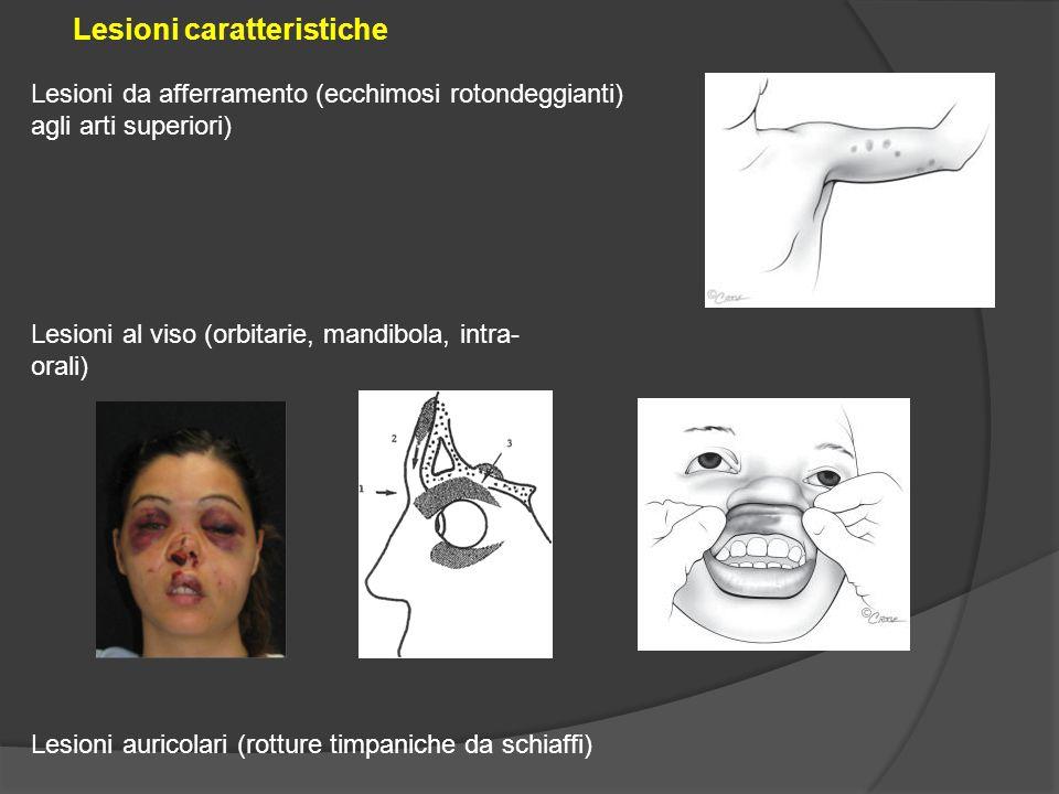 Lesioni da afferramento (ecchimosi rotondeggianti) agli arti superiori) Lesioni caratteristiche Lesioni al viso (orbitarie, mandibola, intra- orali) L