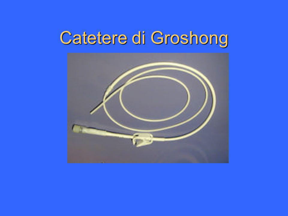 Catetere di Groshong