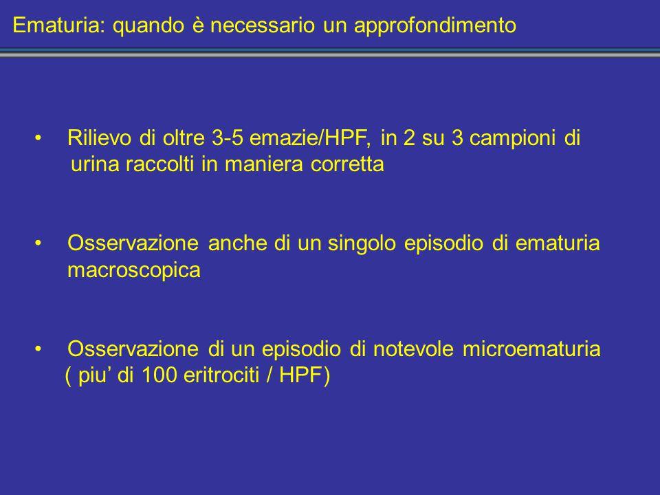 Ematuria: quando è necessario un approfondimento Rilievo di oltre 3-5 emazie/HPF, in 2 su 3 campioni di urina raccolti in maniera corretta Osservazione anche di un singolo episodio di ematuria macroscopica Osservazione di un episodio di notevole microematuria ( piu' di 100 eritrociti / HPF)