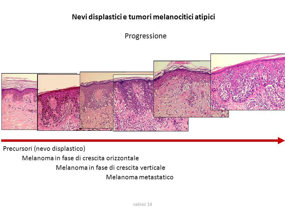 nabissi 14 Nevi displastici e tumori melanocitici atipici Progressione Precursori (nevo displastico) Melanoma in fase di crescita orizzontale Melanoma