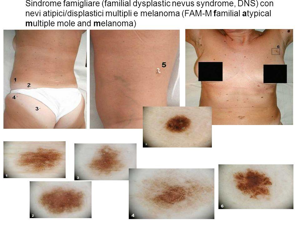 nabissi 14 Sindrome famigliare (familial dysplastic nevus syndrome, DNS) con nevi atipici/displastici multipli e melanoma (FAM-M familial atypical mul