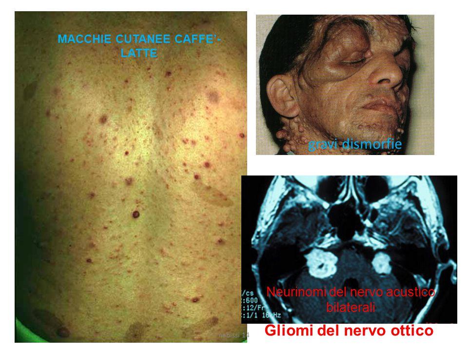 MACCHIE CUTANEE CAFFE'- LATTE gravi dismorfie Neurinomi del nervo acustico bilaterali Gliomi del nervo ottico nabissi 14