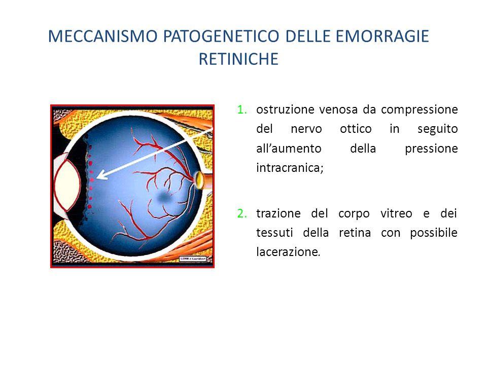 MECCANISMO PATOGENETICO DELLE EMORRAGIE RETINICHE 1.ostruzione venosa da compressione del nervo ottico in seguito all'aumento della pressione intracranica; 2.trazione del corpo vitreo e dei tessuti della retina con possibile lacerazione.