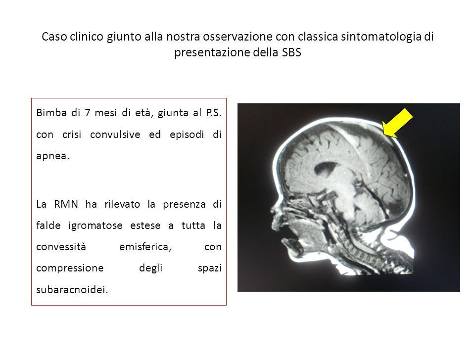 Caso clinico giunto alla nostra osservazione con classica sintomatologia di presentazione della SBS Bimba di 7 mesi di età, giunta al P.S.
