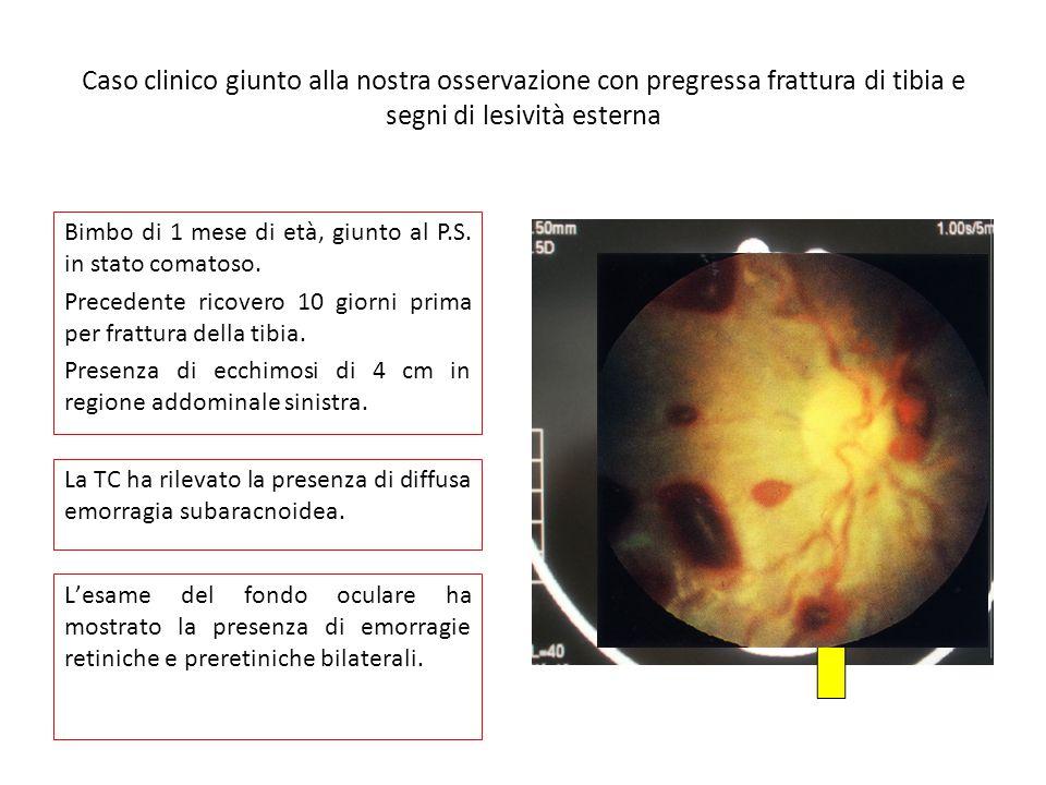 Caso clinico giunto alla nostra osservazione con pregressa frattura di tibia e segni di lesività esterna Bimbo di 1 mese di età, giunto al P.S.