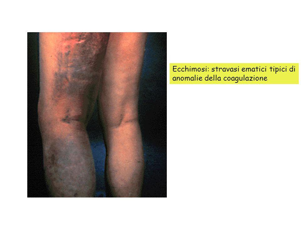 Ecchimosi: stravasi ematici tipici di anomalie della coagulazione
