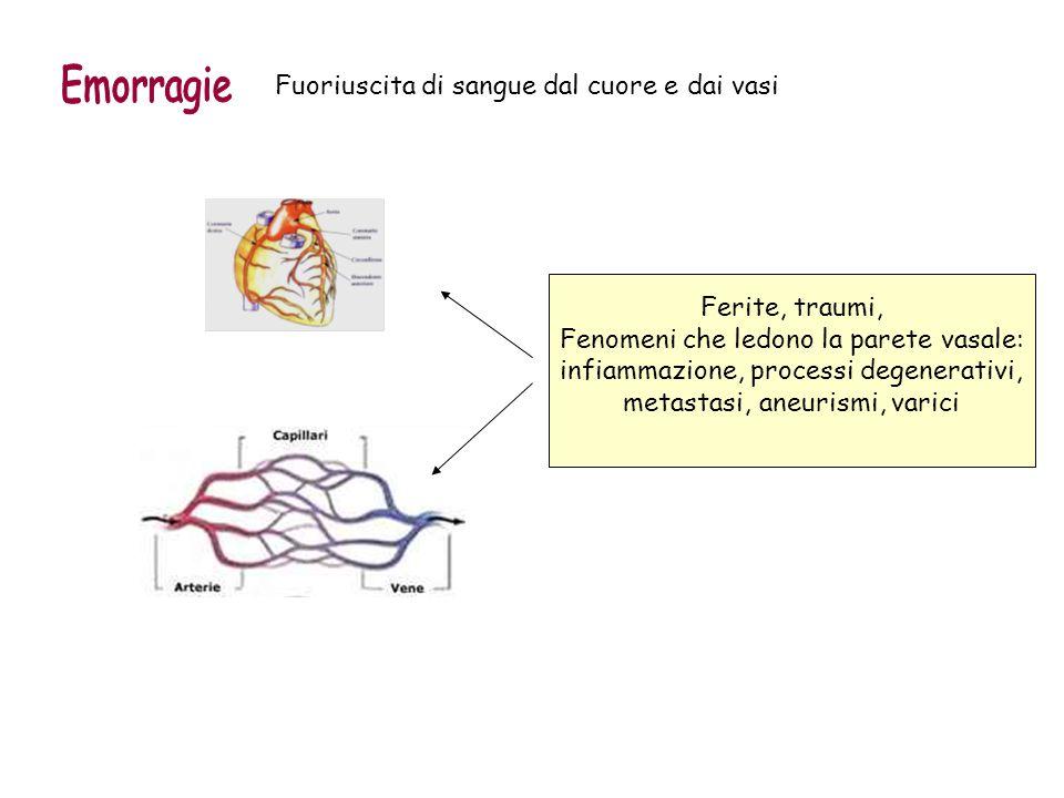 Fuoriuscita di sangue dal cuore e dai vasi Ferite, traumi, Fenomeni che ledono la parete vasale: infiammazione, processi degenerativi, metastasi, aneu