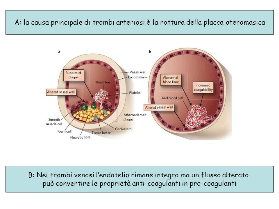 A: la causa principale di trombi arteriosi è la rottura della placca ateromasica B: Nei trombi venosi l'endotelio rimane integro ma un flusso alterato