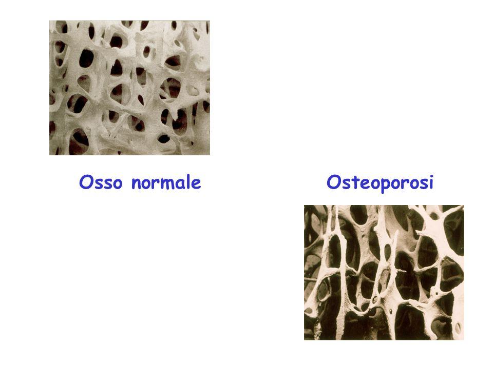 Bone density interpretation