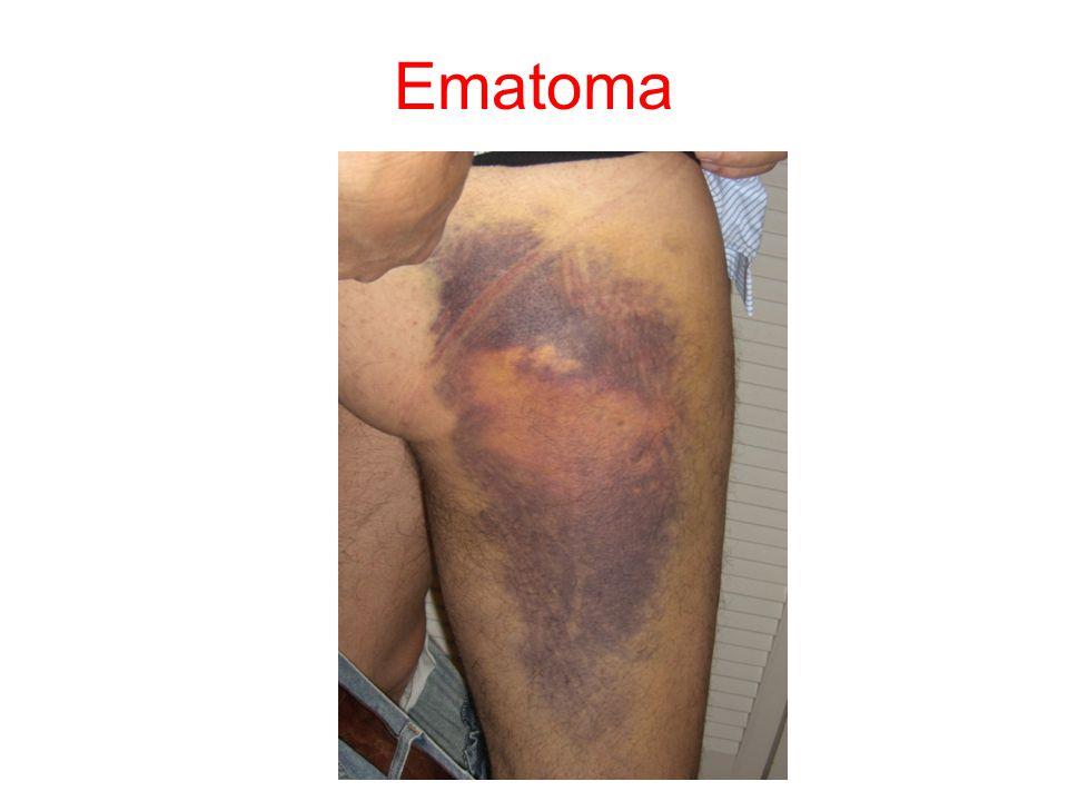 Ematoma