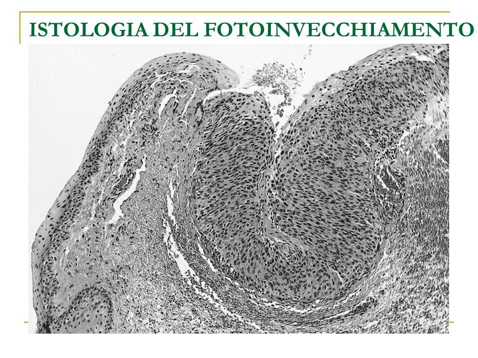 ISTOLOGIA DEL FOTOINVECCHIAMENTO EPIDERMIDE Ispessimento dello strato corneo Acantosi in fase iniziale, atrofia in fase avanzata Ipertrofia dell'epide