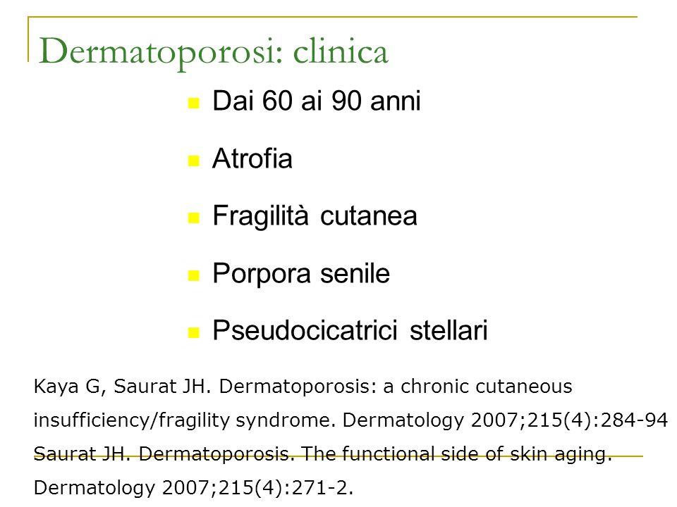 Dermatoporosi: clinica Dai 60 ai 90 anni Atrofia Fragilità cutanea Porpora senile Pseudocicatrici stellari Kaya G, Saurat JH. Dermatoporosis: a chroni