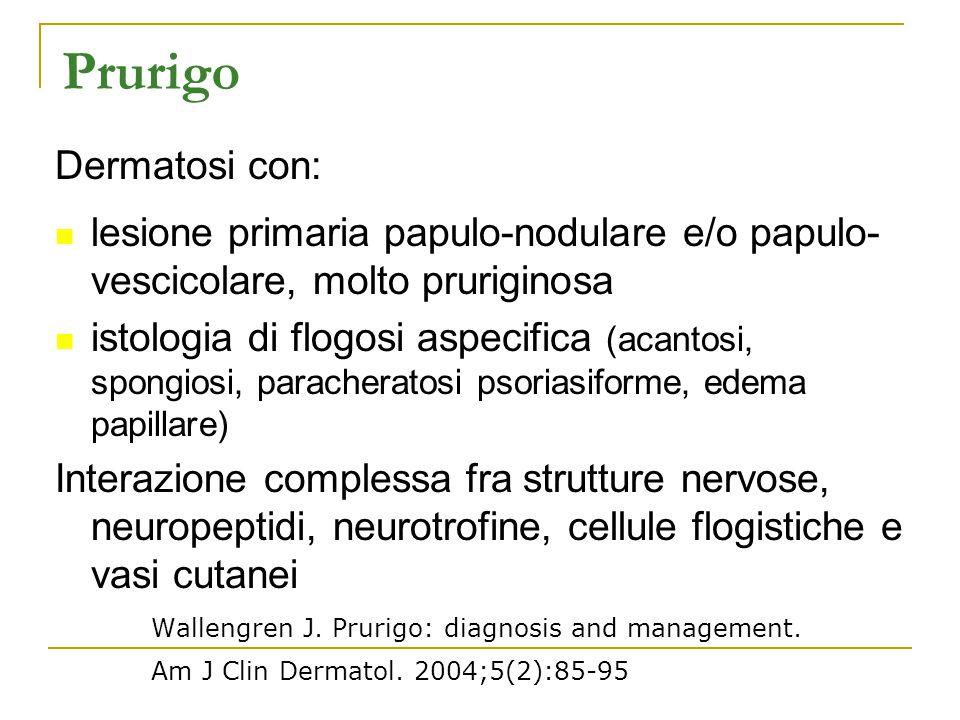 Prurigo Dermatosi con: lesione primaria papulo-nodulare e/o papulo- vescicolare, molto pruriginosa istologia di flogosi aspecifica (acantosi, spongios