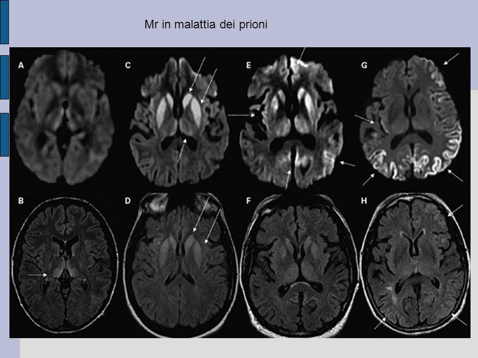 Mr in malattia dei prioni
