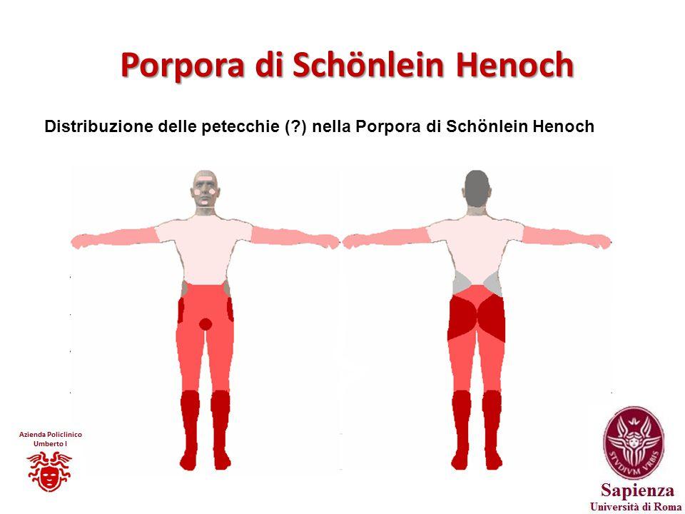 Porpora di Schönlein Henoch Distribuzione delle petecchie (?) nella Porpora di Schönlein Henoch