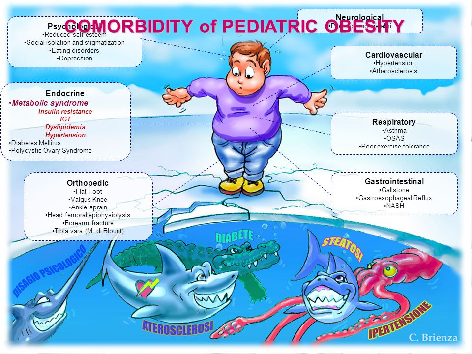 DIAGNOSTIC CRITERIA FOR METABOLIC SYNDROME IN CHILDREN The presence of 3 of these 5 abnormalities allows MS diagnosis IGT<5th percentile >95° percentile >95th percentile ZS BMI ≥ 2 Weiss et al Fasting gluc.