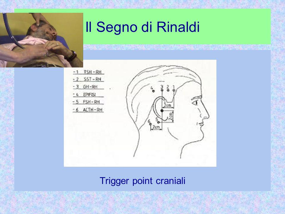 Il Segno di Rinaldi Trigger point craniali