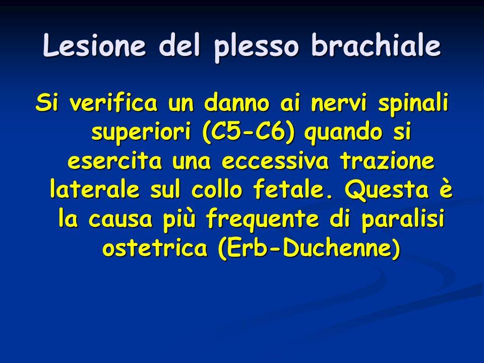 Lesione del plesso brachiale Si verifica un danno ai nervi spinali superiori (C5-C6) quando si esercita una eccessiva trazione laterale sul collo feta