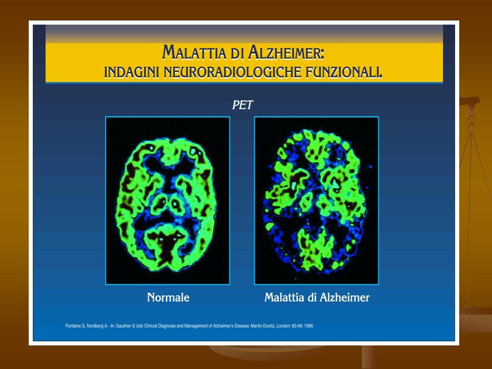 Anatomia patologica Anatomia patologica L'encefalo sai presenta atrofico, L'encefalo sai presenta atrofico, Il peso è ridotto, Il peso è ridotto, Le circonvoluzioni sono assottigliate, Le circonvoluzioni sono assottigliate, Le scissure ed i solchi allargati con ampliamento dei ventricoli laterali.