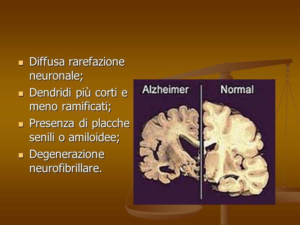 Diffusa rarefazione neuronale; Diffusa rarefazione neuronale; Dendridi più corti e meno ramificati; Dendridi più corti e meno ramificati; Presenza di