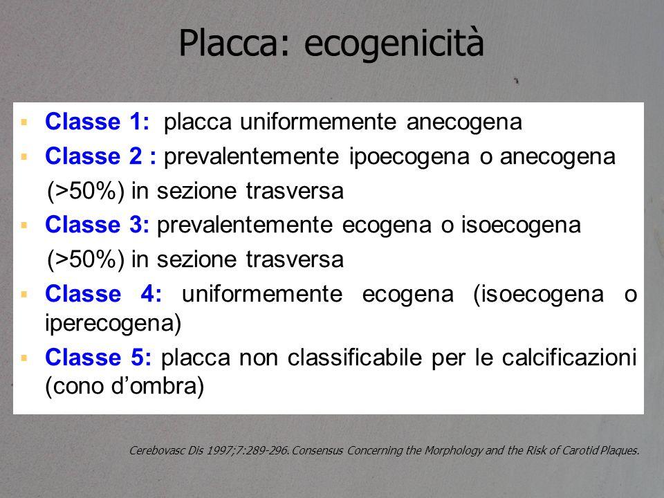 Placca: ecogenicità  Classe 1: placca uniformemente anecogena  Classe 2 : prevalentemente ipoecogena o anecogena (>50%) in sezione trasversa  Class