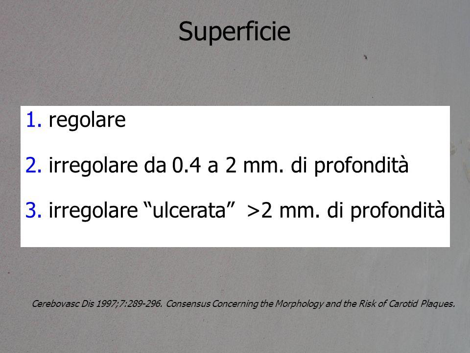 """1.regolare 2.irregolare da 0.4 a 2 mm. di profondità 3.irregolare """"ulcerata"""" >2 mm. di profondità Cerebovasc Dis 1997;7:289-296. Consensus Concerning"""