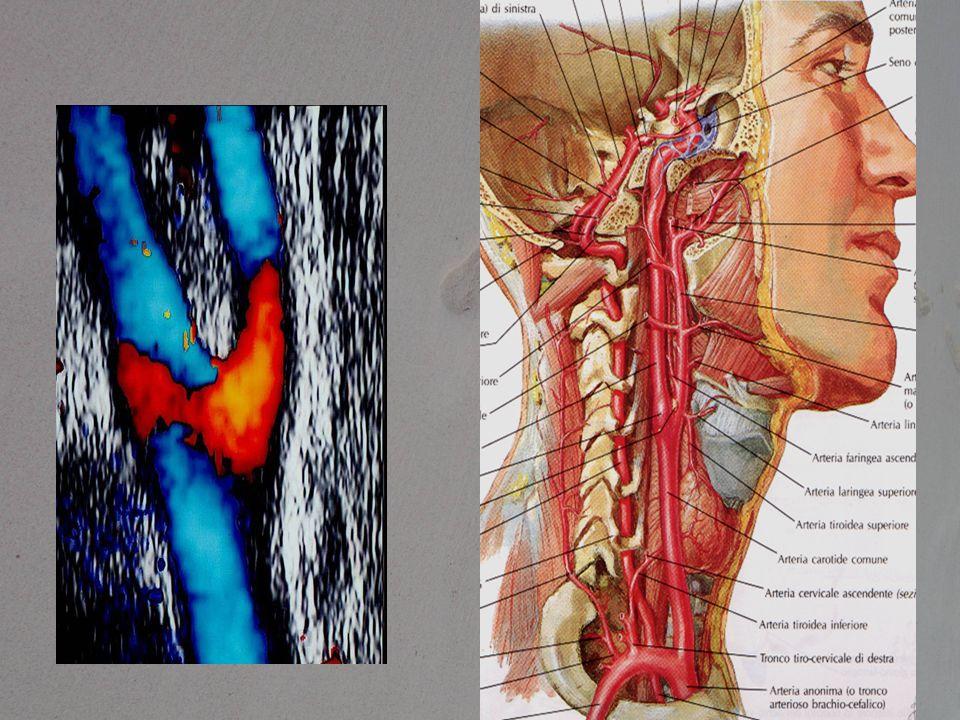 Cosa mi aspetto 1.Segnalazione dello spessore medio-intimale 2.Presenza/assenza placche 3.Tipologia delle placche 4.Stenosi emodinamica/non emodinamica 5.Orientamento del flusso vertebrale