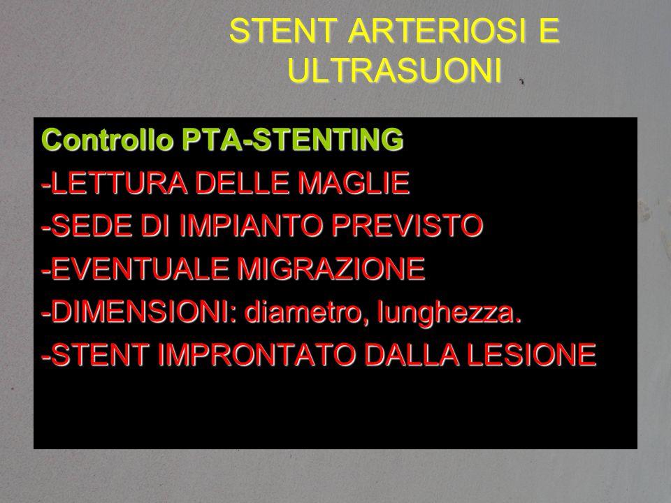 STENT ARTERIOSI E ULTRASUONI Controllo PTA-STENTING -LETTURA DELLE MAGLIE -SEDE DI IMPIANTO PREVISTO -EVENTUALE MIGRAZIONE -DIMENSIONI: diametro, lung