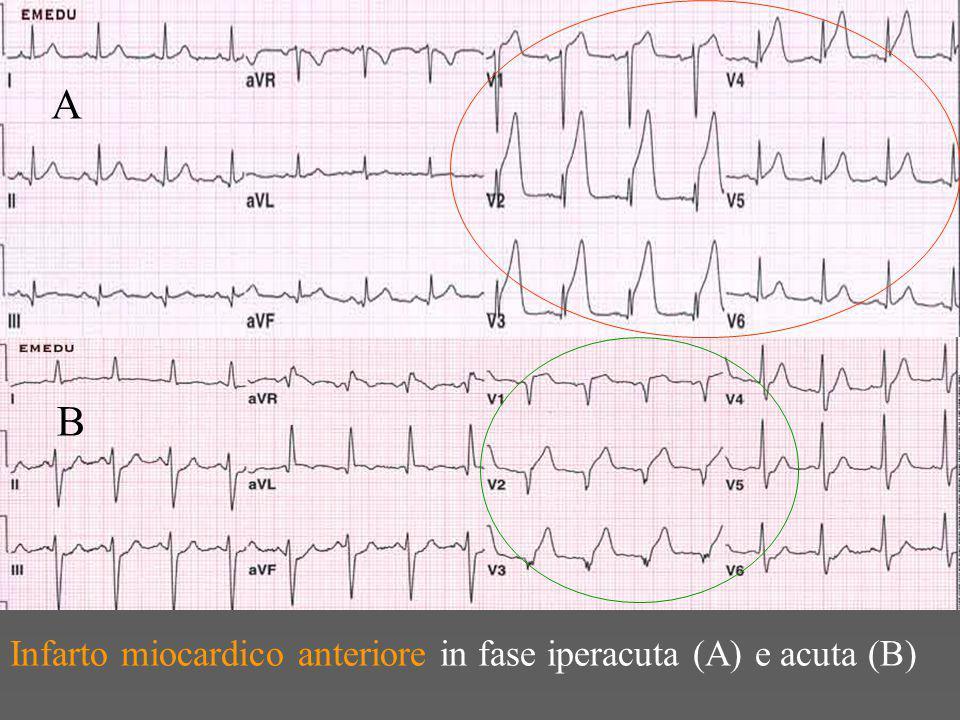 Infarto miocardico anteriore in fase iperacuta (A) e acuta (B) A B