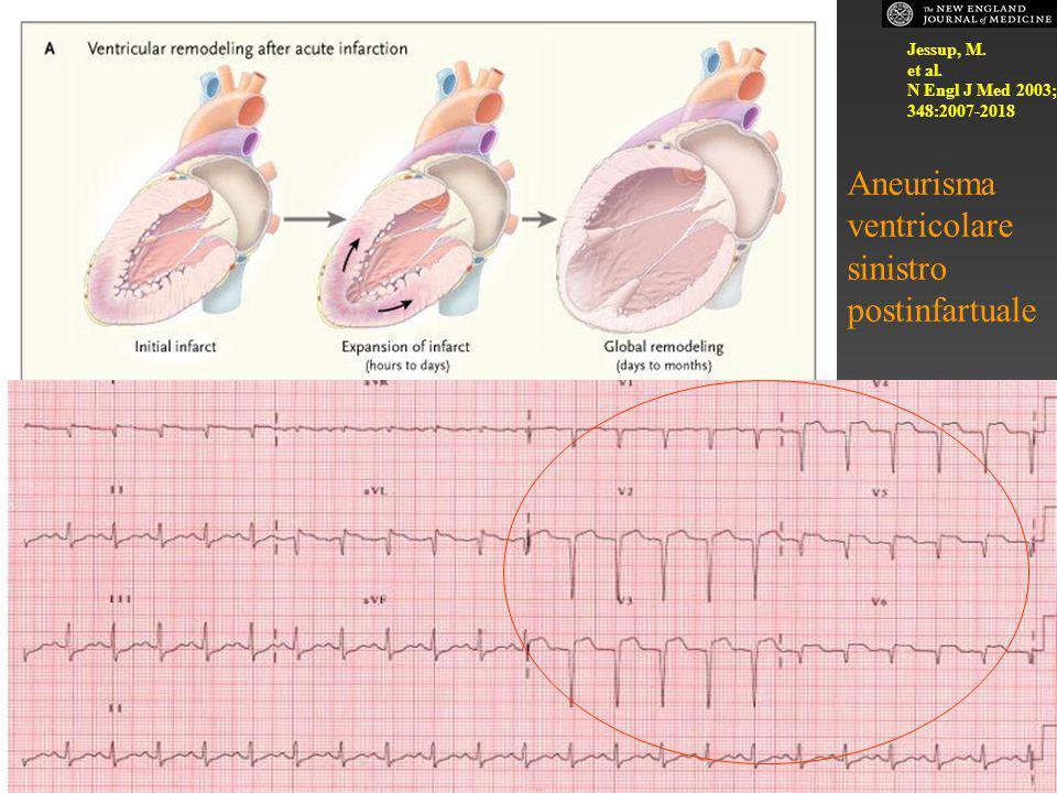 Jessup, M. et al. N Engl J Med 2003; 348:2007-2018 Aneurisma ventricolare sinistro postinfartuale