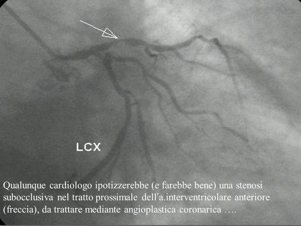 Qualunque cardiologo ipotizzerebbe (e farebbe bene) una stenosi subocclusiva nel tratto prossimale dell ' a.interventricolare anteriore (freccia), da trattare mediante angioplastica coronarica ….
